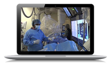 afibinnovations-live-case